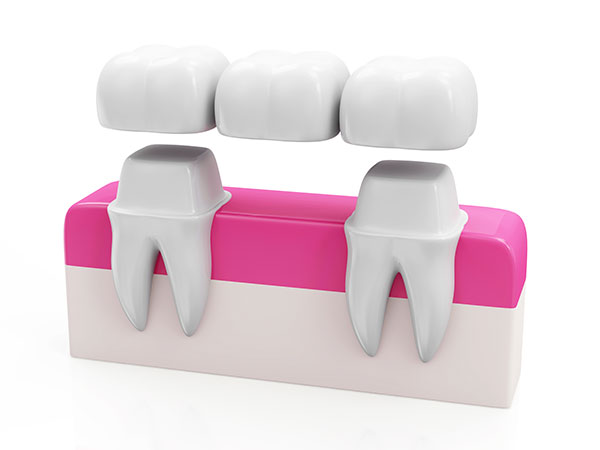 dental crown and dental bridge in mississauga on