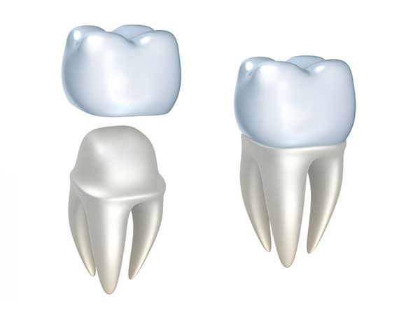 dental crown in mississauga on dentist