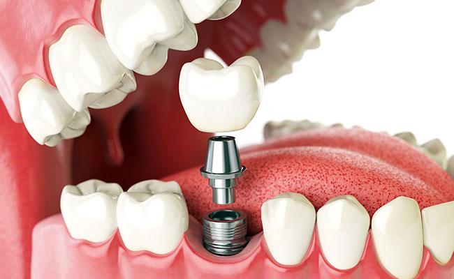 dental implants mississauga on dentist spectrum square