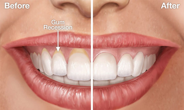 gum grafting in mississauga on dentist