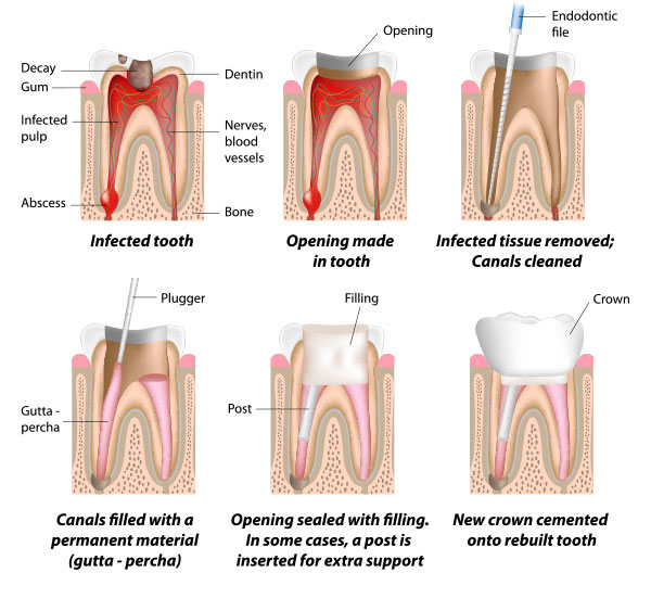 root canal therapy rct in mississauga on
